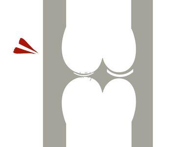 ひざ関節軟骨のすり減り